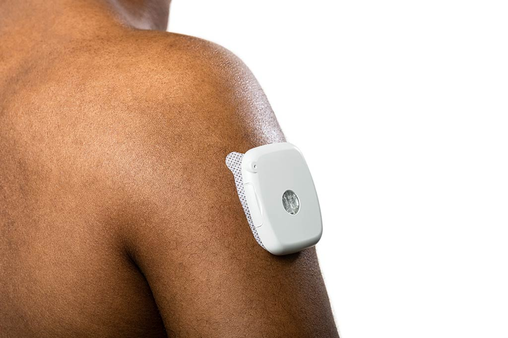 QForma-on-body-insulin-pump
